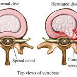 disc herniation model