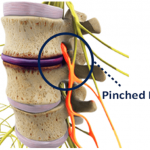 pinched nerve in the neck